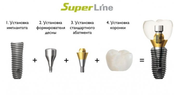 Имплантанты Superline
